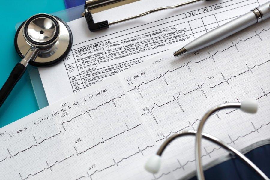 hipertenzijos kardiograma čili pipirai nuo hipertenzijos