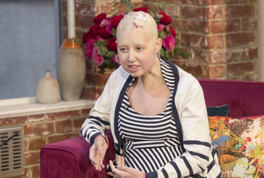Kasos vėžio simptomai