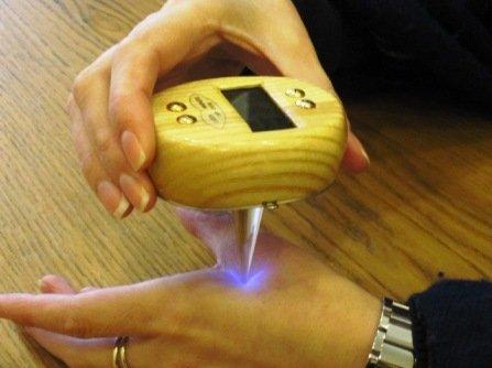 Lazerinė punktūra, naudojant gydomąjį lazerį