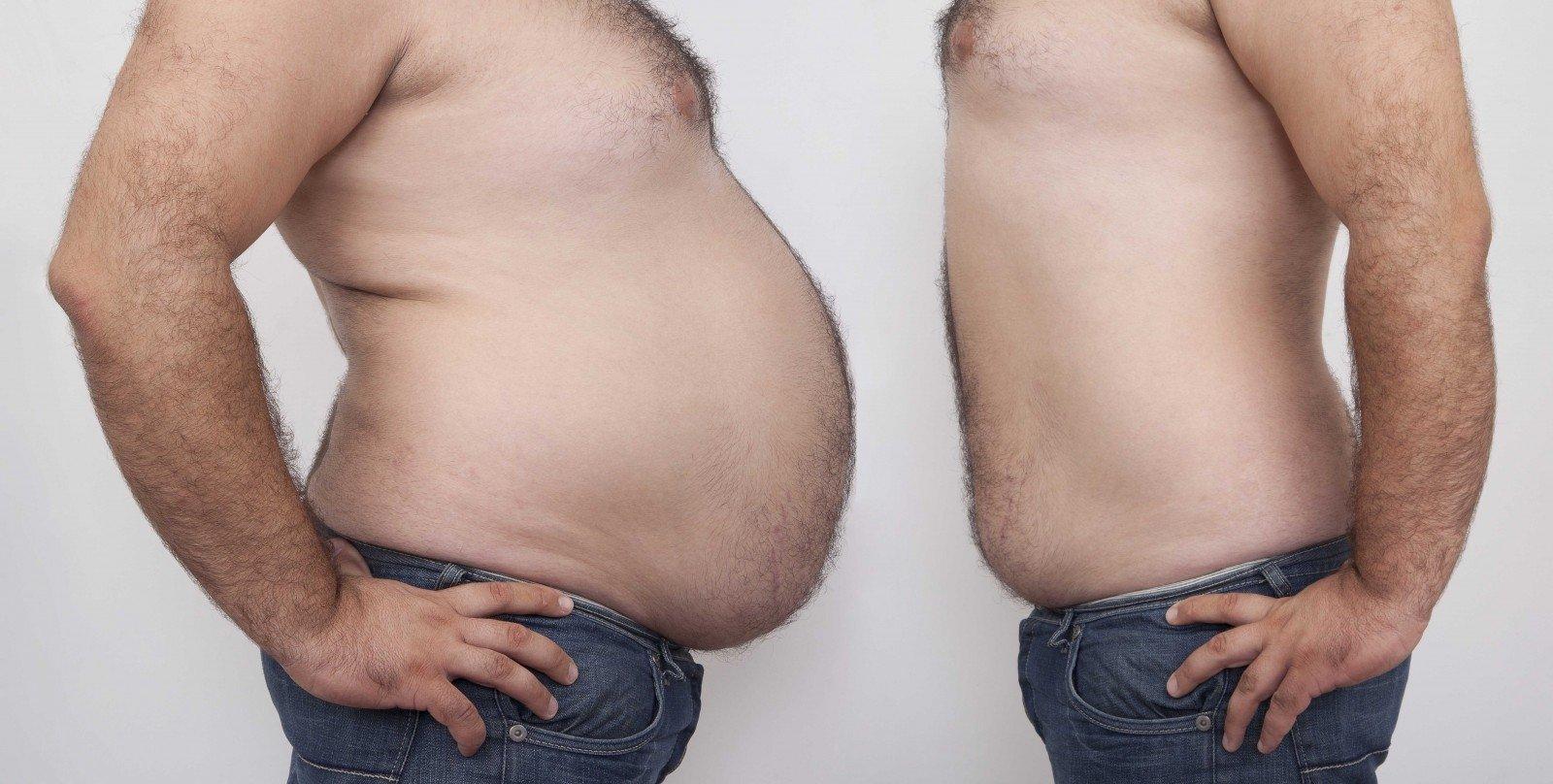 būtina mesti svorį)