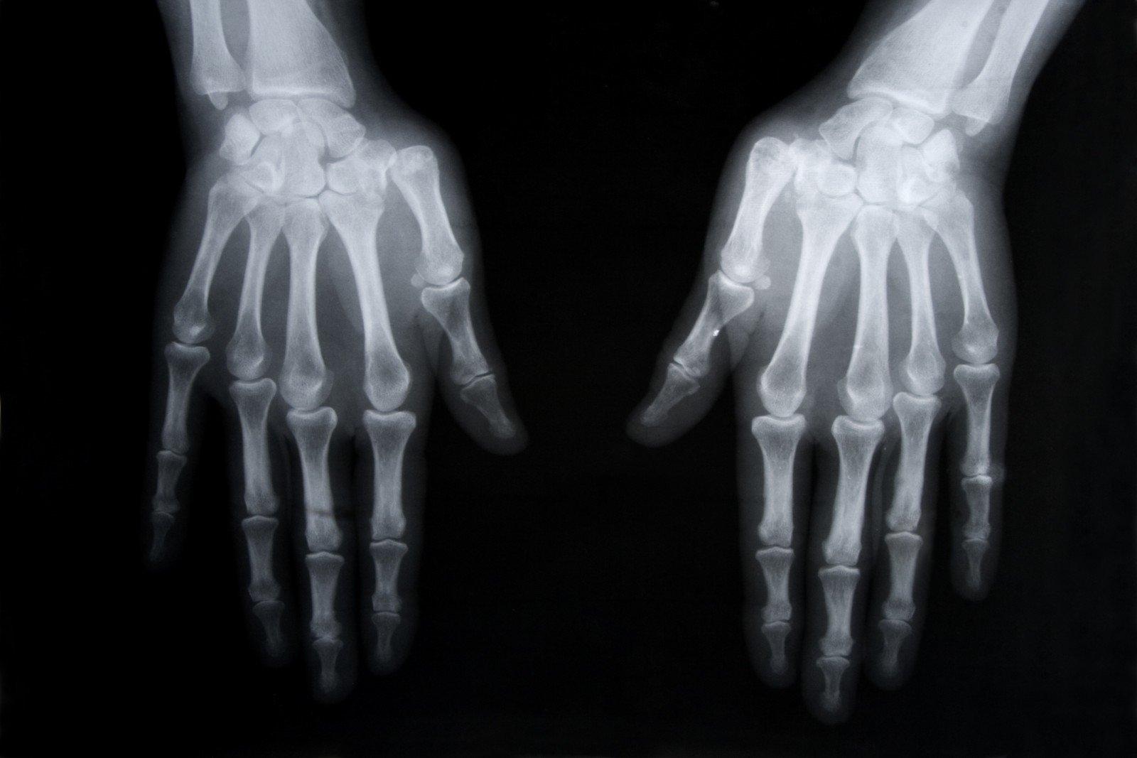 Reumatoidinis artritas ir ranku raumenu jega