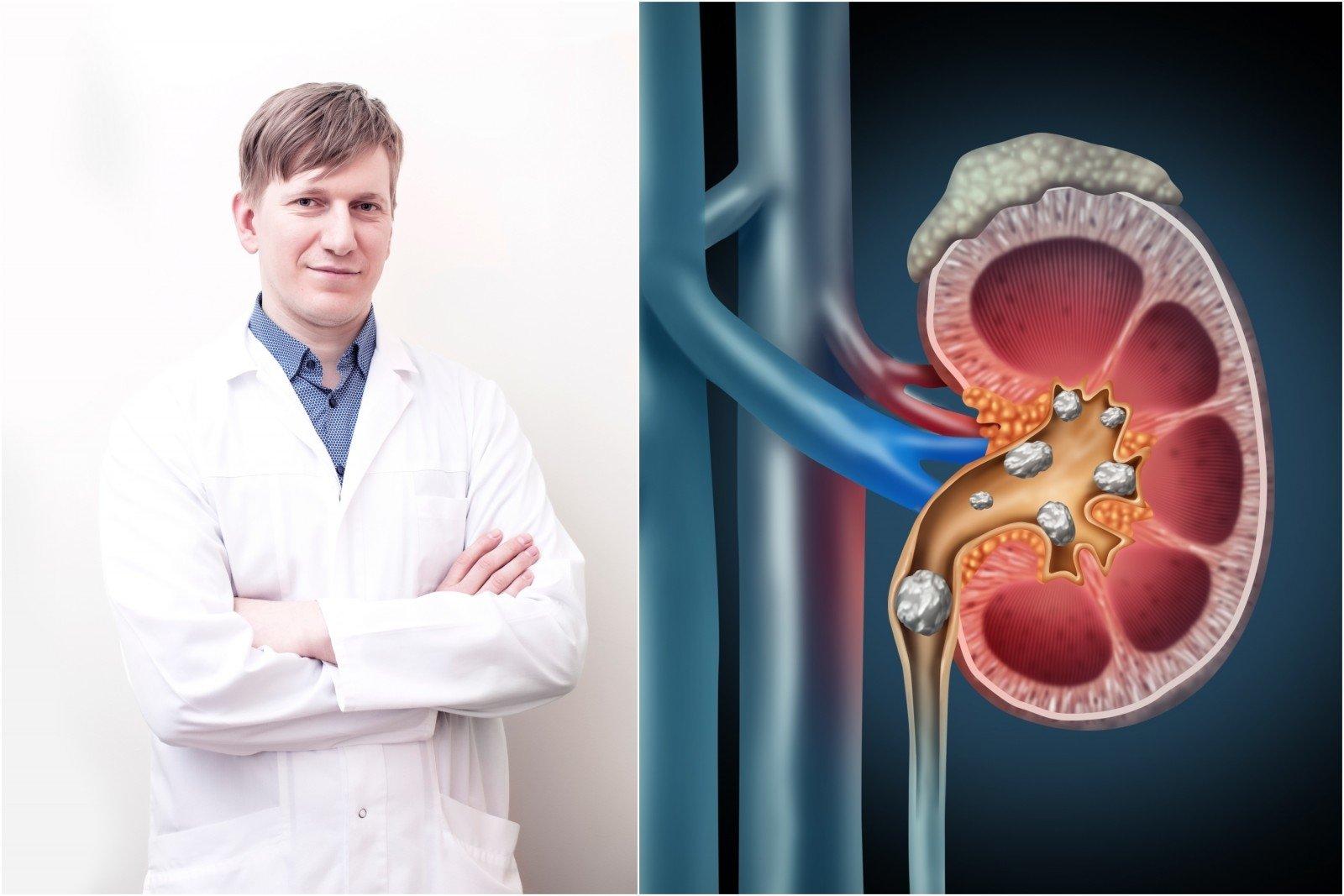 Prostatos adenomos gydymas liaudies metodais