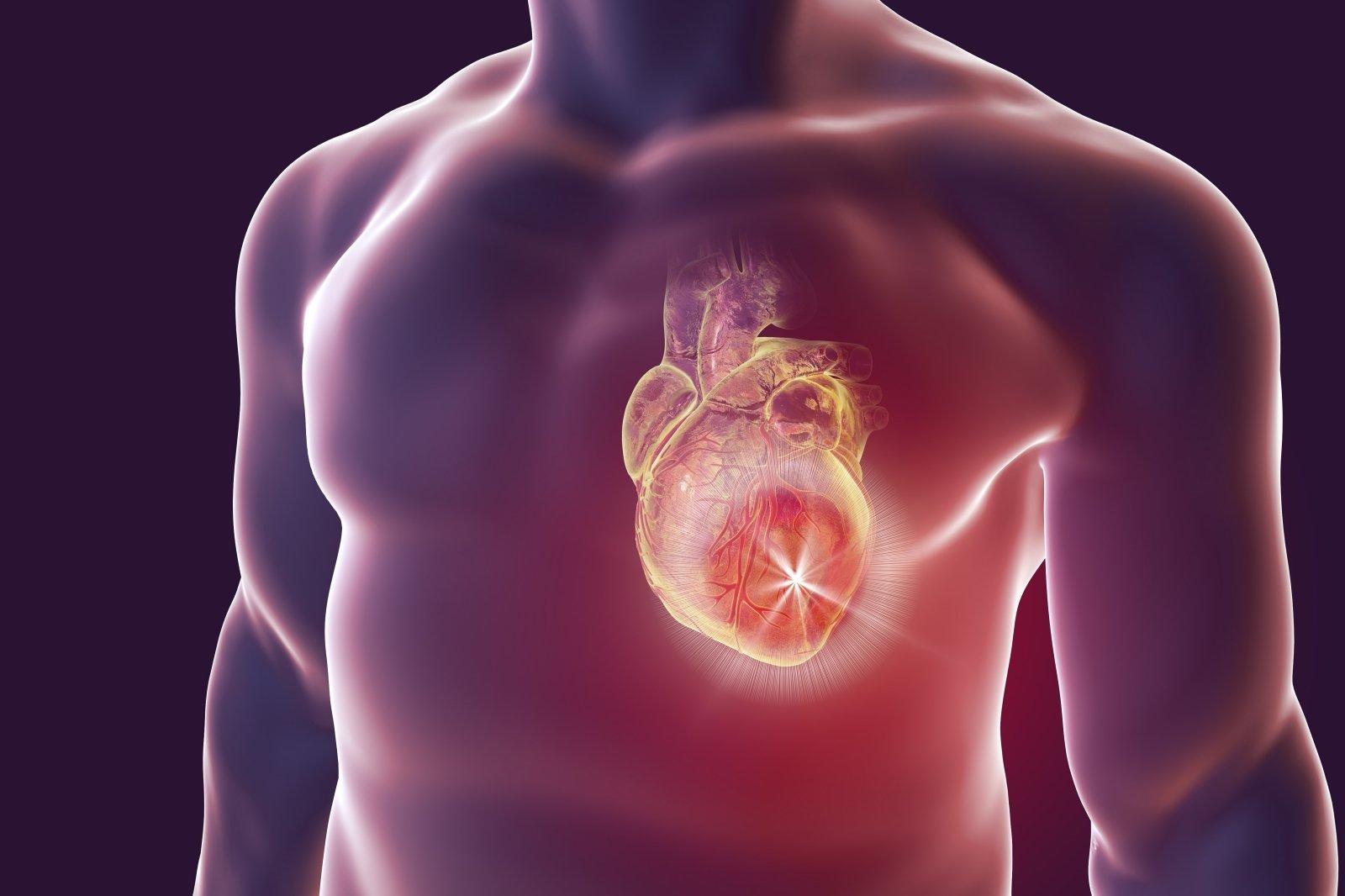 ar naudinga aukoti kraują sergant hipertenzija