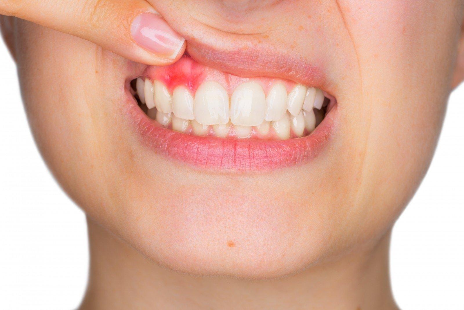 kaip bloga burnos sveikata gali sukelti širdies ligas)